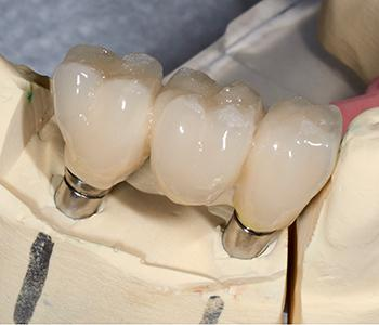 Implant Crowns Gambrills Bingham - Lester Dentistry