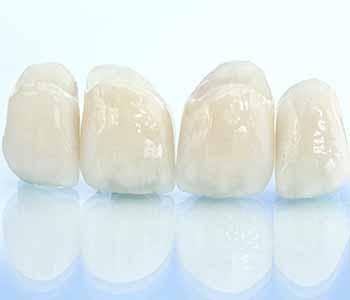 Dr. Bingham-Lester Vickii at Bingham-Lester Dentistry explains what the benefits of same day porcelain crowns are.