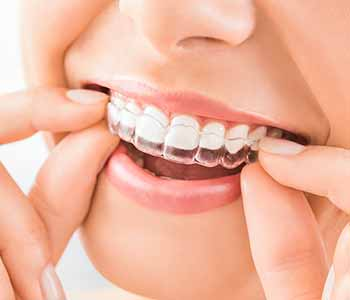 Dr. Bingham-Lester Vickii at Bingham - Lester Dentistry explains how to keep their invisible braces clear