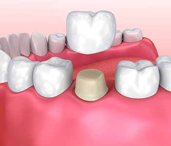 Dr. Bingham-Lester Vickii at Bingham-Lester Dentistry offers affordable same day dental crowns.
