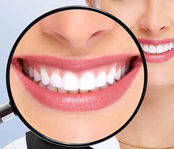Dr. Bingham-Lester Vickii at Bingham-Lester Dentistry offers a teeth whitening procedure using KöR deep bleaching.