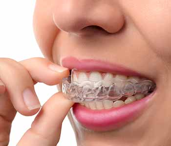 Dr. Bingham-Lester helps her Gambrills, MD, patients understand how effective Invisalign braces are