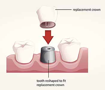 Dental crowns are a dental restoration used when a tooth is badly damaged or decayed, past the point that a filling or cosmetic bonding can repair it