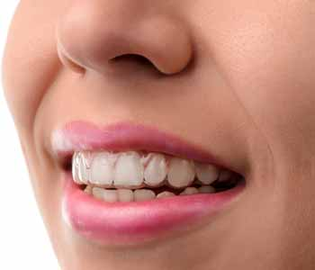 At Bingham-Lester Dentistry, provide Invisalign treatment for patients around Crofton and Gambrills, MD.
