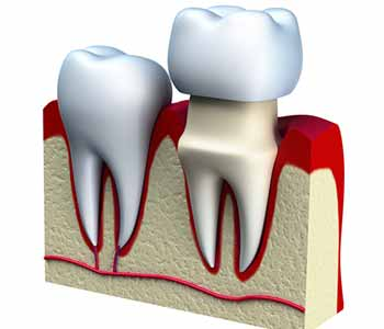 At Bingham-Lester Dentistry, we provide same day dental crowns or CEREC crowns for patients around Crofton and Gambrills, MD.