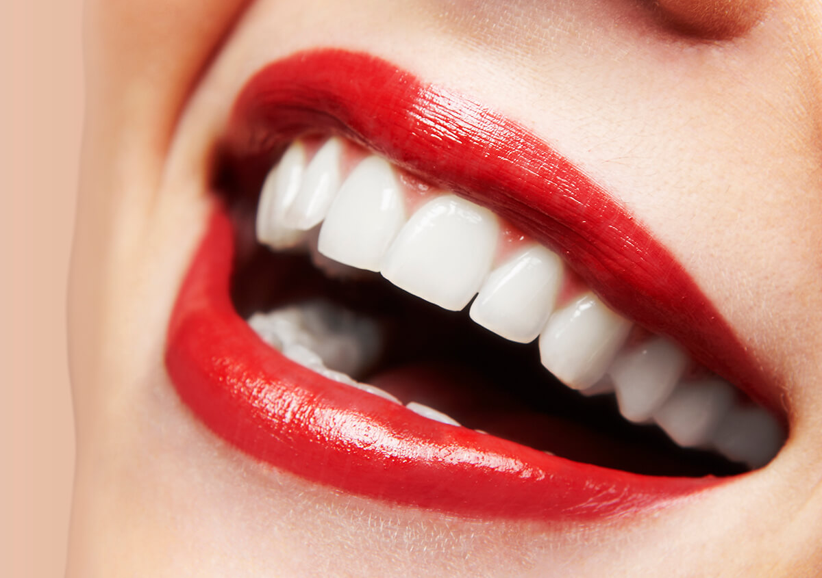 Need A Radiant Smile? Come for the Safest Teeth Whitening Methods in Gambrills, MD Area