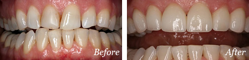 Before and After Bridge Treatment - 01