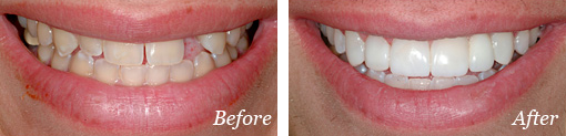 Before and After bridge Treatment 03