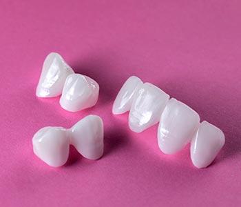 A dental bridge spans the gap left by one or several adjacent missing teeth.