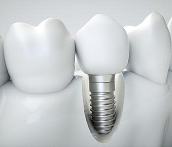 Dental implants in Gambrills mimic a tooth root, providing a strong, stable foundation for a porcelain crown.