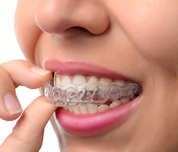 Read More About Invisalign