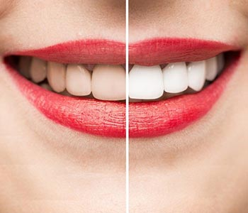 Read More About Teeth Whitening