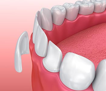 Dental veneers in Gambrills are not replacement teeth, but are considered to be prosthetics – artificial body parts.